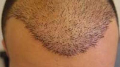 نکات مهم کاشت مو و پیوند موی طبیعی